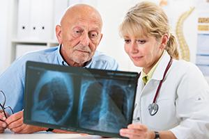 lung cancer diagnosis