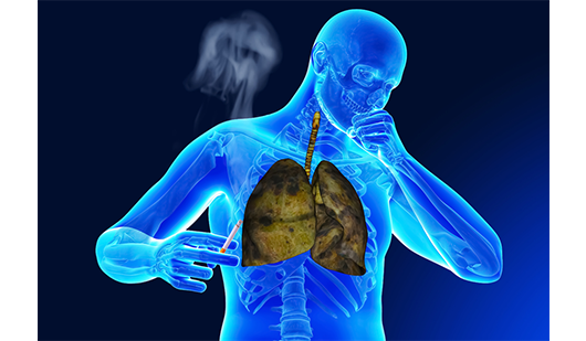 Smoker's Cough: Why It Happens and How to Stop It