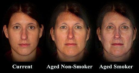 smokers face